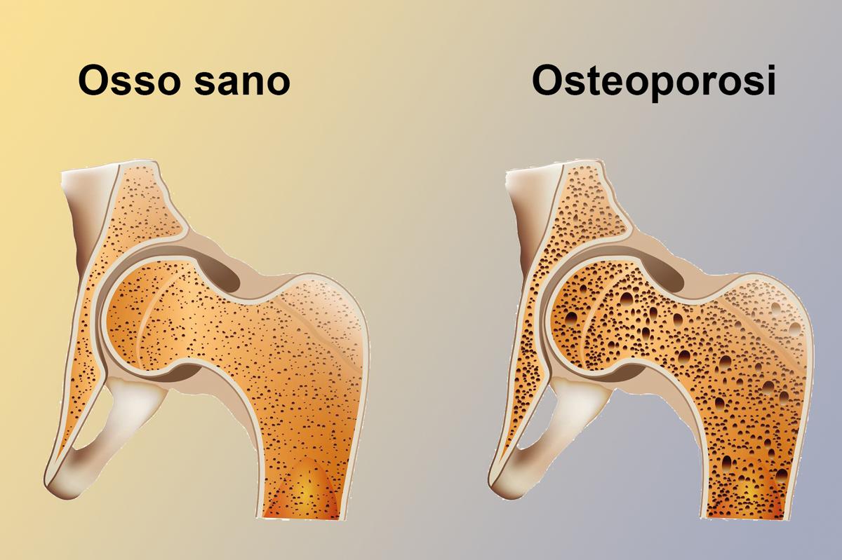 Osteoporosi: si può prevenire?